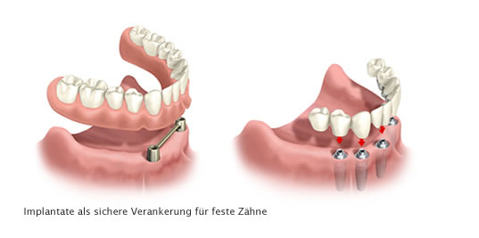 Implants form secure anchoring points for permanent teeth.