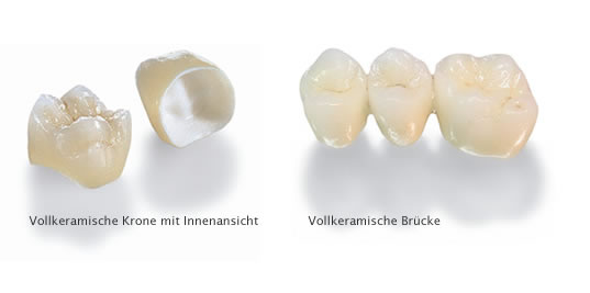 Dental Office of Dr. med. dent. M.Sc. Michael Wolf & Colleagues – View: All-ceramic bridge: interior and exterior